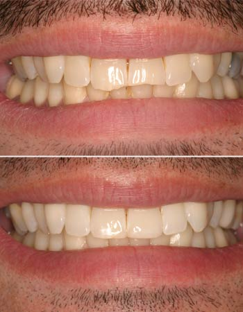 Dental Tooth Bonding