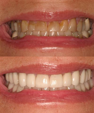 Full Mouth Dental Restoration Transforming Fairlawn Smiles