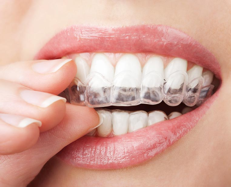 Akron Invisalign® Clear Braces Invisibly Correcting Crooked Smiles