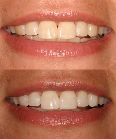 Akron's Brightest Smiles Start with Tooth Whitening